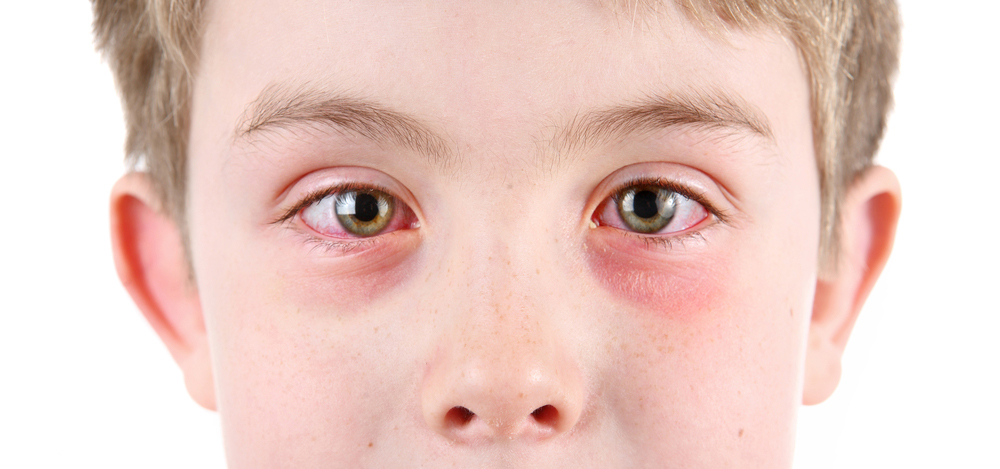 Child with pink eye needs to see his optometrist in Columbia, MO.